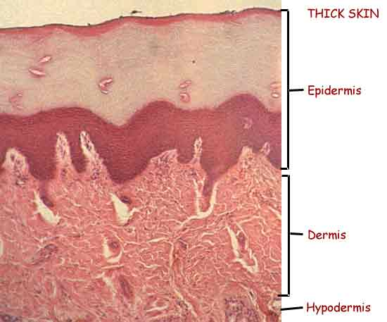 Thick skin  stained mi...